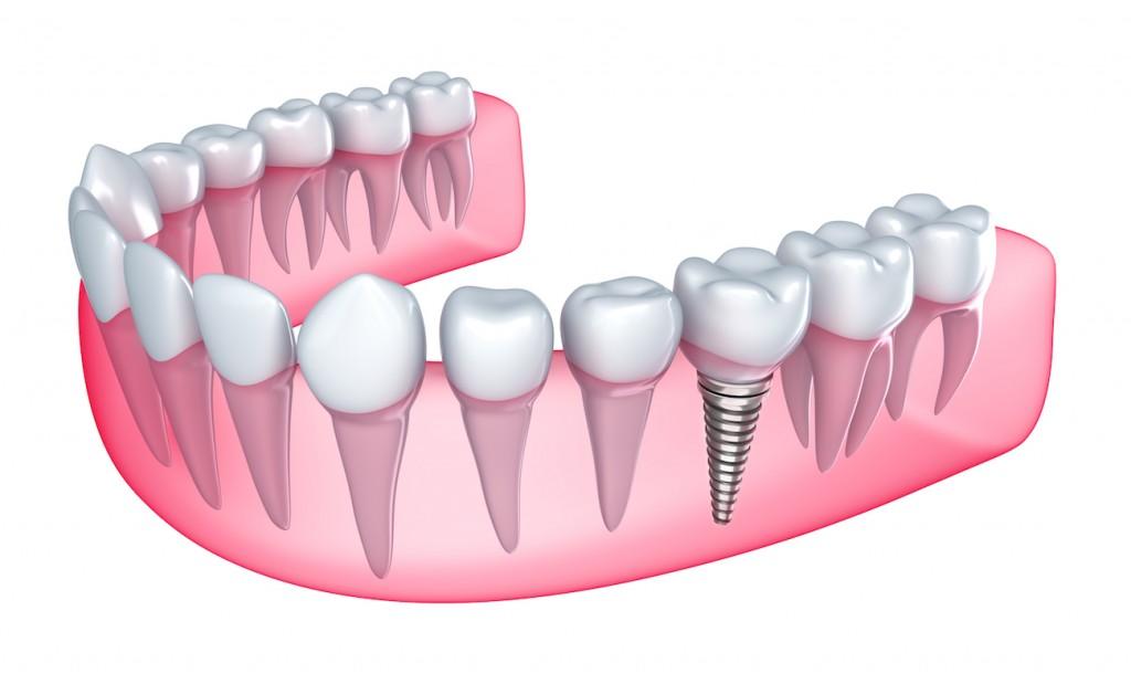 Qué debemos saber de un implante dental