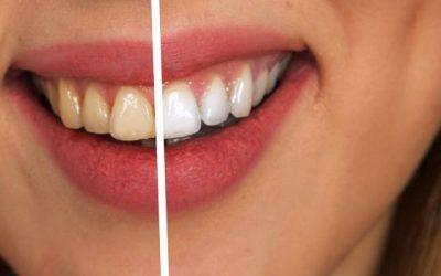 Servicio de blanqueamiento dental en Dos Hermanas