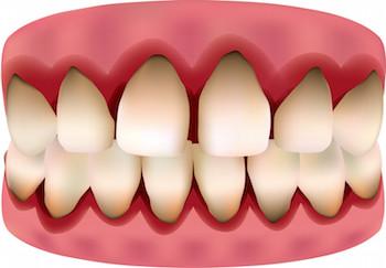 ¿Qué es la Gingivitis y como podemos prevenirla?
