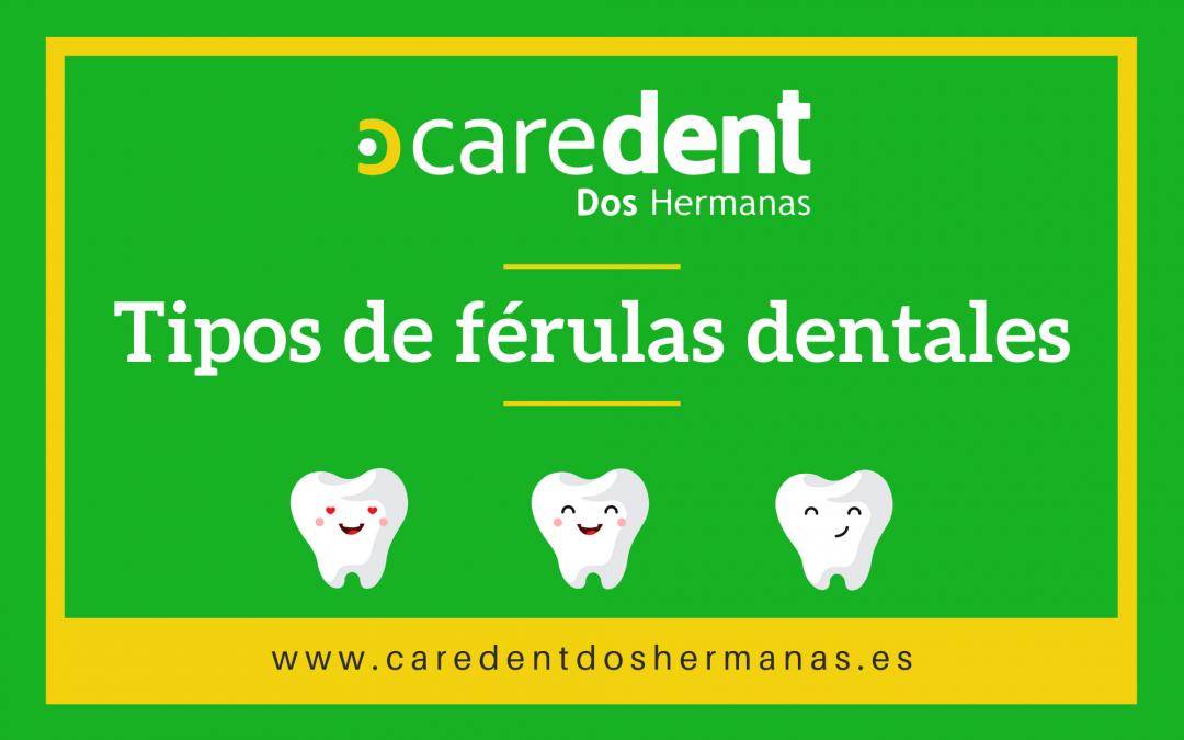 Tipos de férulas dentales